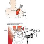 Shoulder Surgery, Steadman Phillipon